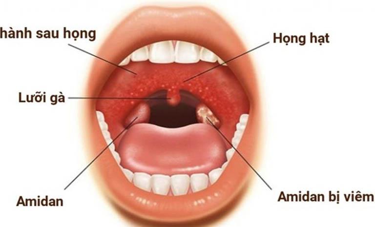 Các bệnh về họng và triệu chứng nhận biết, điều trị