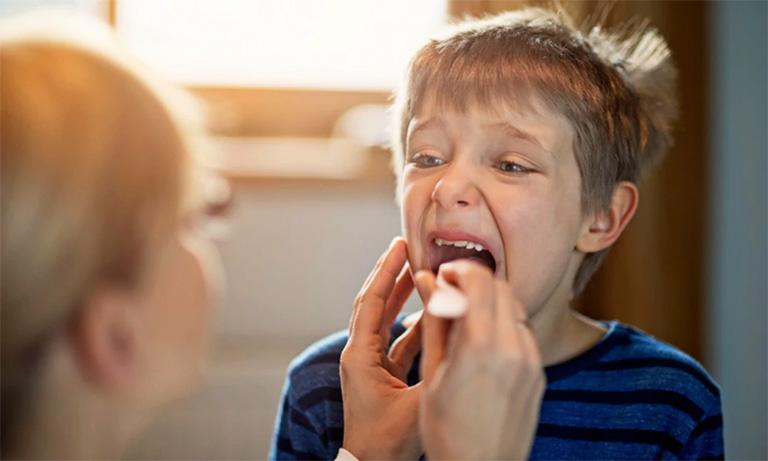 một số lưu ý khi trẻ bị viêm họng kèm sốt cao