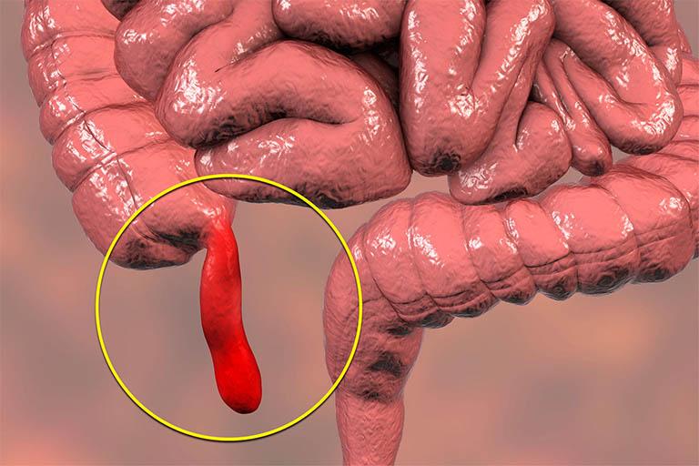 đau dạ dày quặn từng cơn có nguy hiểm không?