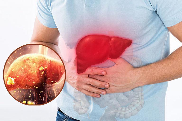 cách giảm men gan tại nhà