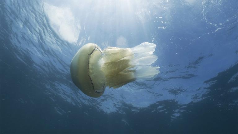 dị ứng sứa biển
