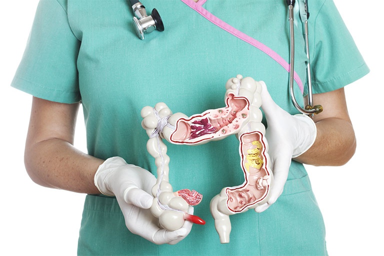 Khi nào có thể khám đại tràng không cần nội soi?