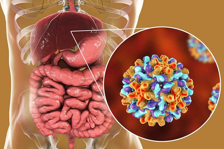 Viêm gan B là gì? Dấu hiệu, cách chẩn đoán, điều trị