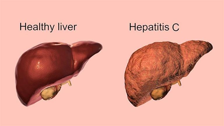 bệnh viêm gan C có nguy hiểm không?