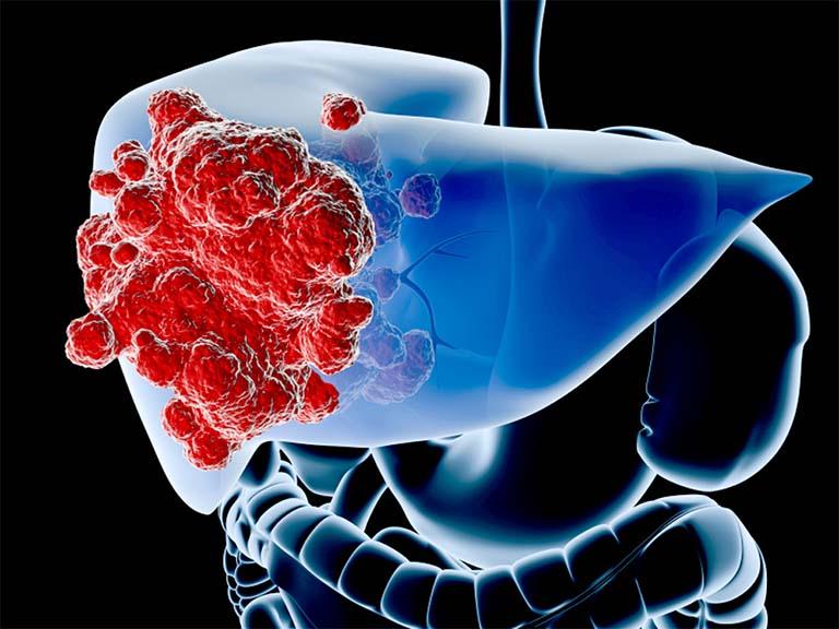 mức độ nguy hiểm của bệnh viêm gan C