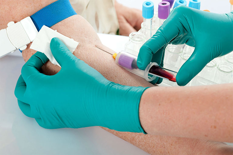 chẩn đoán bệnh viêm gan