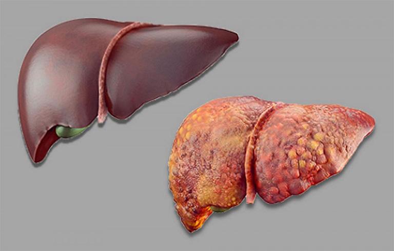 biến chứng nguy hiểm của bệnh viêm gan