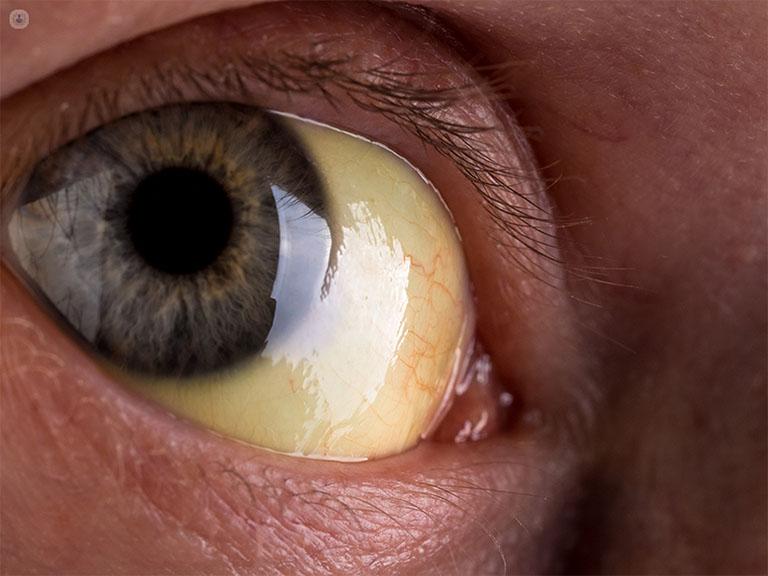 triệu chứng của bệnh viêm gan