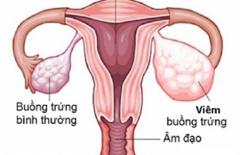 Bệnh viêm buồng trứng