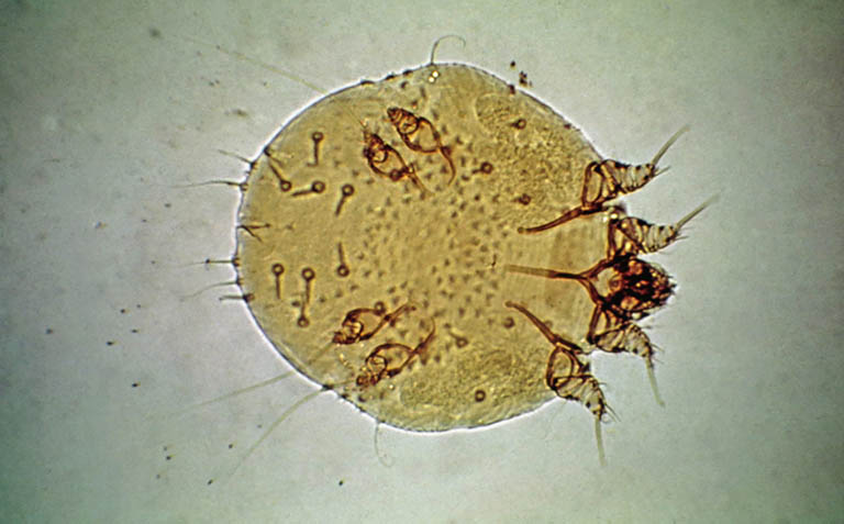 Ký sinh trùng Sarcoptes scabiei hominis là nguyên nhân khiến bệnh ghẻ nước xuất hiện