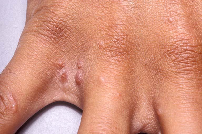Những nốt mụn nước do bệnh ghẻ nước gây ra mọc nông và rải rác trên bề mặt da