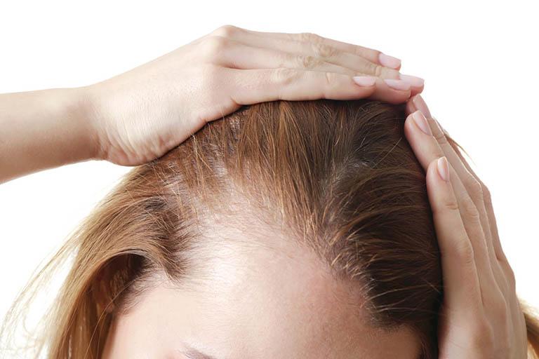 7 thuốc chống rụng tóc - Giúp phục hồi, mọc lại nhanh nhất