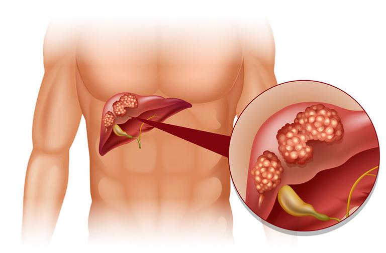 mức độ nguy hiểm của bệnh viêm gan B