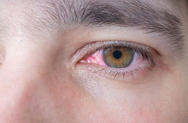 Các biến chứng của bệnh vảy nến