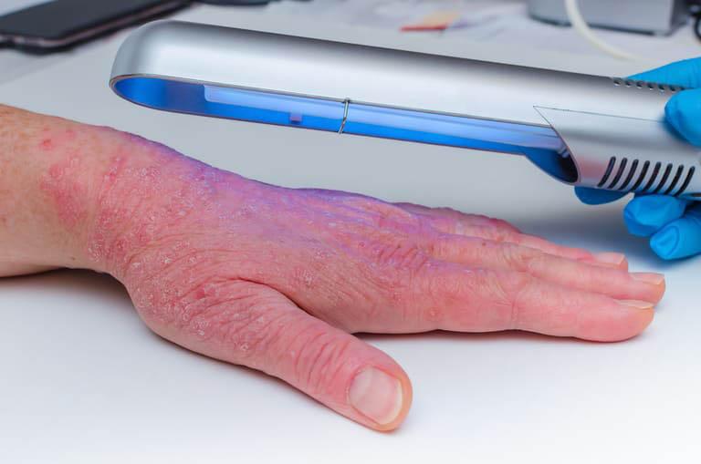 Điều trị bệnh vảy nến bằng UVB thông rộng