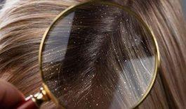Gàu ống là gì? Nguyên nhân và cách trị nhanh