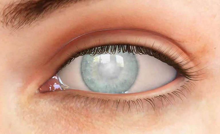 Bệnh võng mạc tiểu đường khiến bệnh nhân bị mù