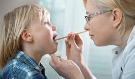 Viêm amidan cấp ở trẻ em là gì?