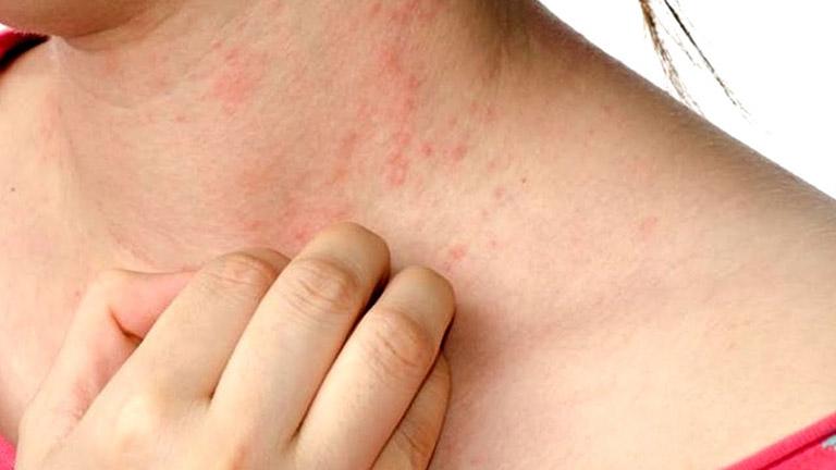 Phân biệt viêm da tiếp xúc và zona