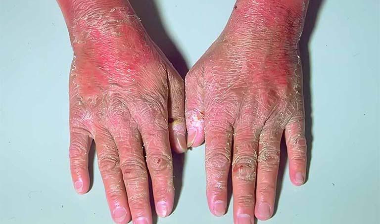 Nguy cơ biến chứng của bệnh á sừng nếu không điều trị