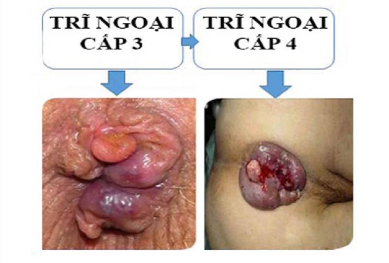 Bệnh trĩ ngoại độ 4 là giai đoạn tiến triển của bệnh trĩ ngoại độ 1, độ 2 và đặc biệt là trĩ ngoại độ 3