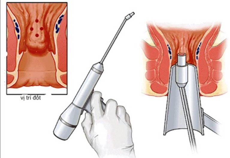 Dùng phương pháp xâm lấn tối thiểu HCPT cắt trĩ điều trị trĩ ngoại độ 4