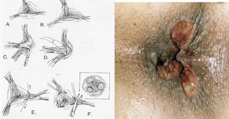 Điều trị bệnh trị ngoại độ 4 bằng phương pháp cắt trĩ Milligan Morgan
