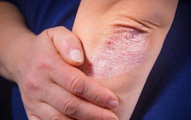 Cách chăm sóc bệnh nhân vảy nến nhanh phục hồi
