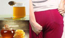 Lợi ích của mật ong với người bệnh trĩ