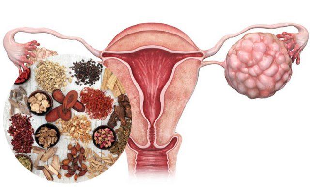 điều trị ung thư buồng trứng bằng đông y
