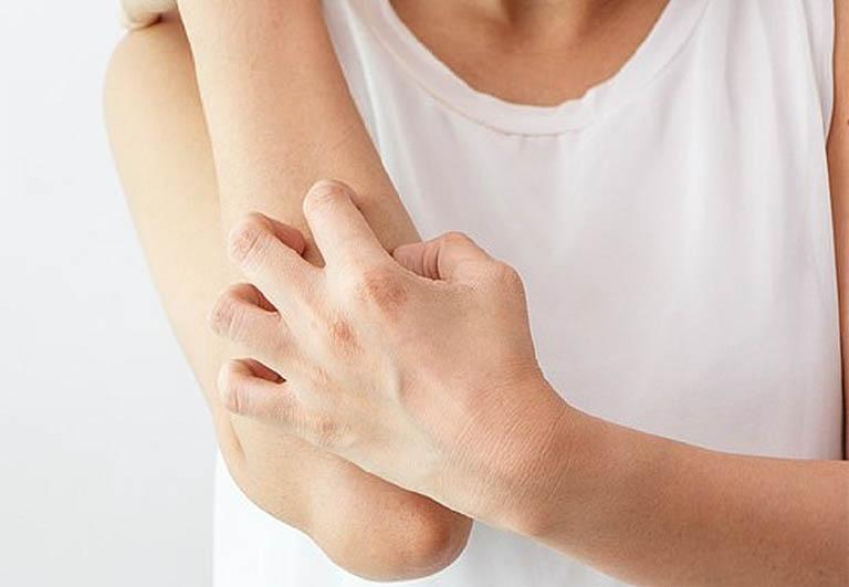Không cào, không gãi hoặc tác động mạnh lên vùng da bị tổn thương