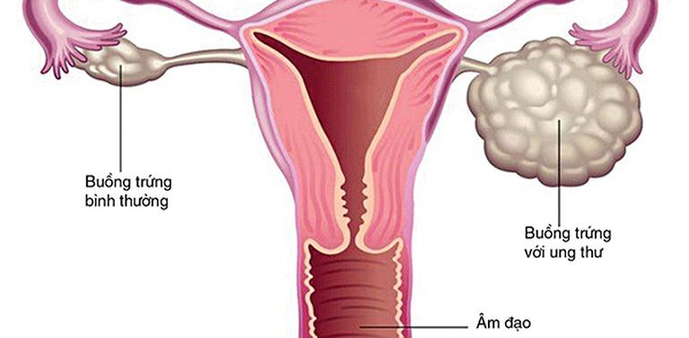 Ung thư buồng trứng giai đoạn đầu là gì?