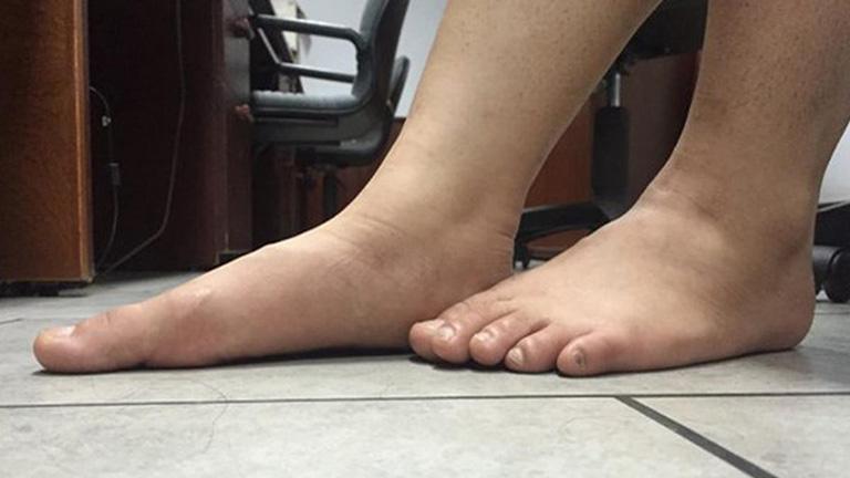 Tổng quan về hội chứng bàn chân bẹt