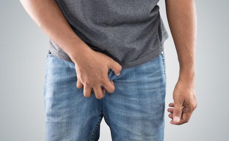 Triệu chứng của bệnh viêm da cơ địa ở vùng kín