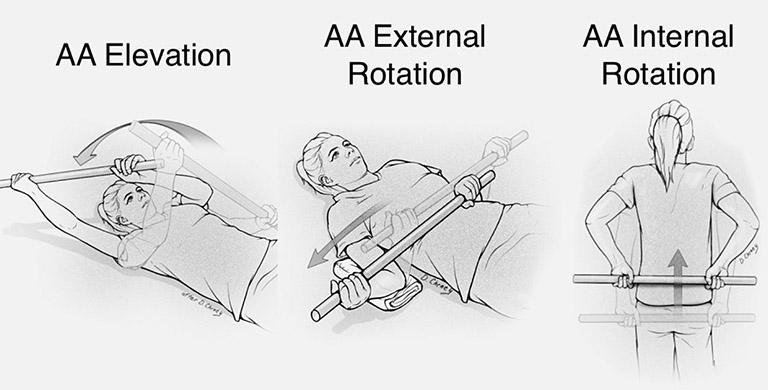 Các bài tập vật lý trị liệu phục hồi viêm quanh khớp vai