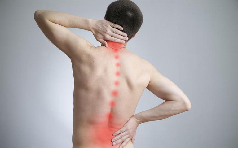 Bệnh vôi hóa cột sống gây ra không ít sự đau đớn khó chịu ở vùng lưng và cổ