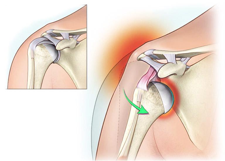 Trật khớp vai là tình trạng chấn thương điển hình khiến dây chằng và các gân trở nên lỏng lẻo, từ đó dẫn đến hiện tượng đau vai