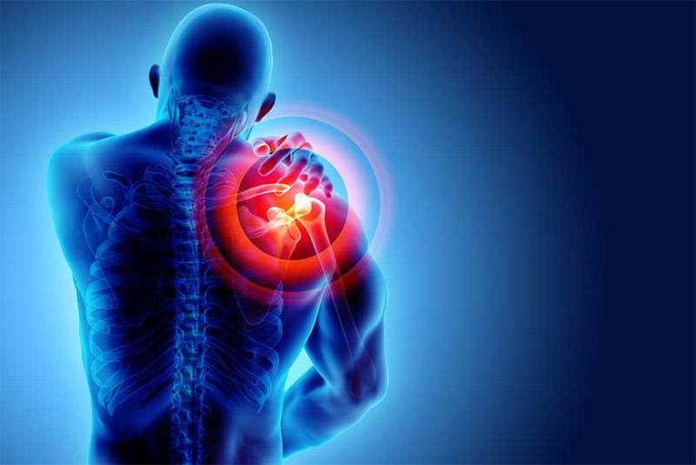 Đau vai là tình trạng đau nhức vùng vai, thậm chí lan ra các vùng lân cận như gáy, lưng, cổ hoặc bụng