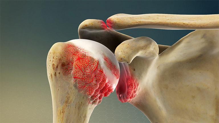 Tuy hiện tượng thoái hóa khớp không phổ biến nhưng cũng chính là nguyên nhân gây ra hiện tượng đau nhức vai