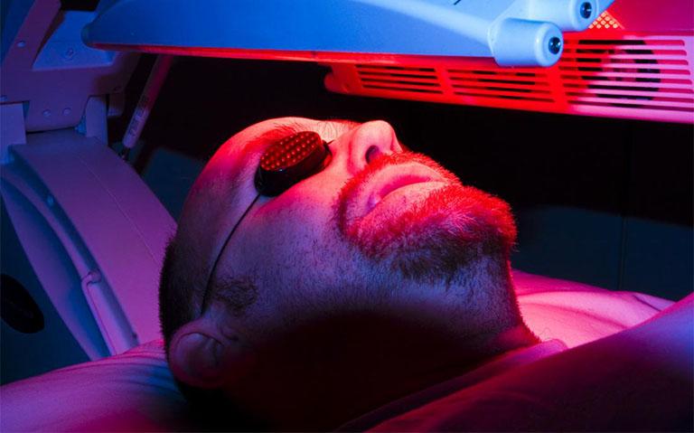 Điều trị bệnh dày sừng ánh sáng