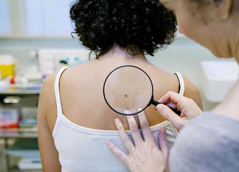 Kiểm tra sự tăng trưởng của da