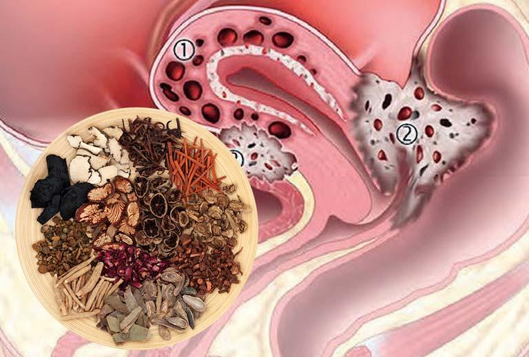 điều trị lạc nội mạc tử cung bằng đông y