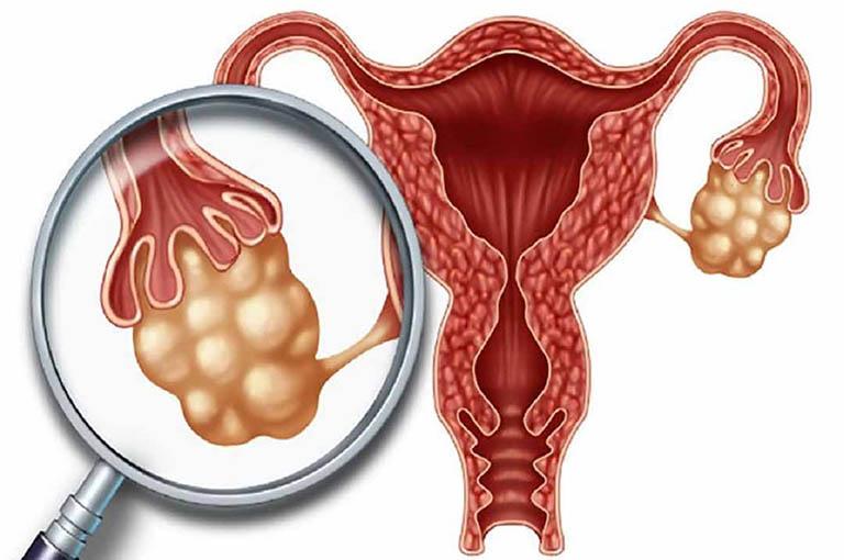 Độ tuổi dễ bị ung thư buồng trứng