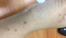 bệnh ghẻ ruồi
