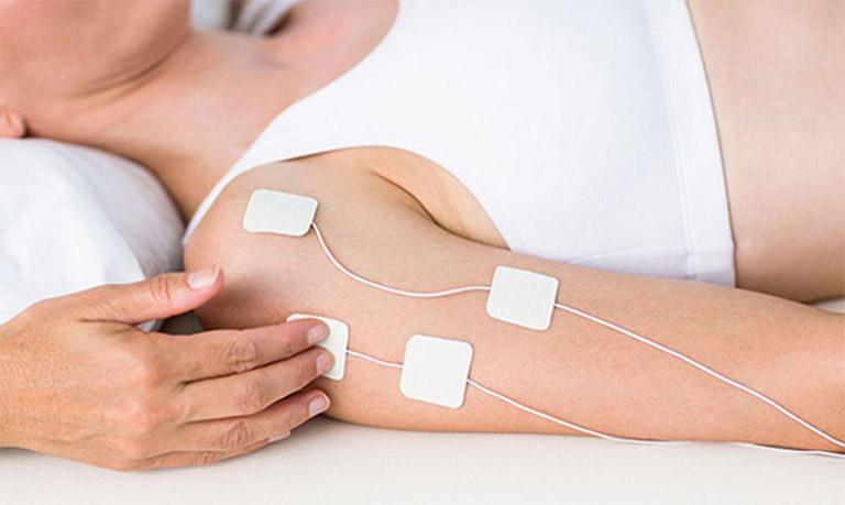 Điều trị hội chứng cổ vai cánh tay
