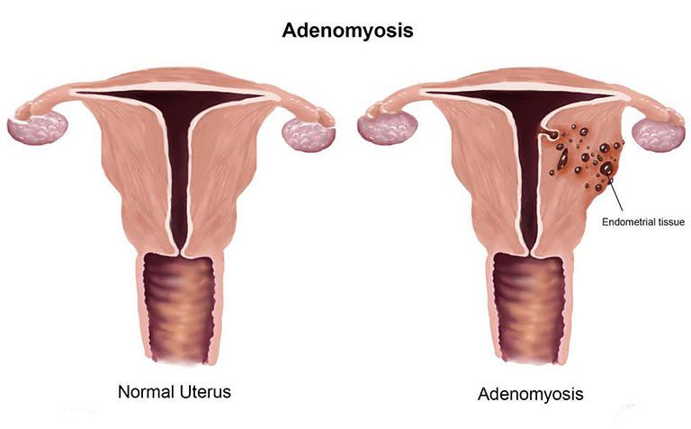 U lạc nội mạc tử cung liên quan đến sự hiện diện và phát triển bất bình thường của mô đệm ngoài tử cung và những tuyến nội mạc tử cung