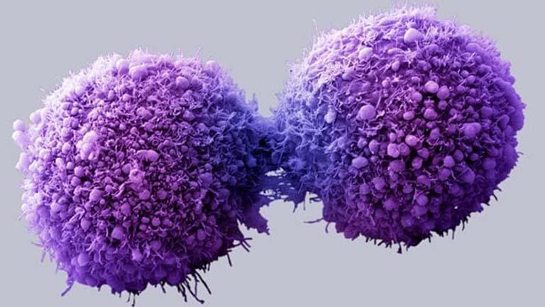Ung thư buồng trứng di căn khi nào?