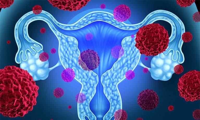 Thế nào là ung thư buồng trứng di căn?