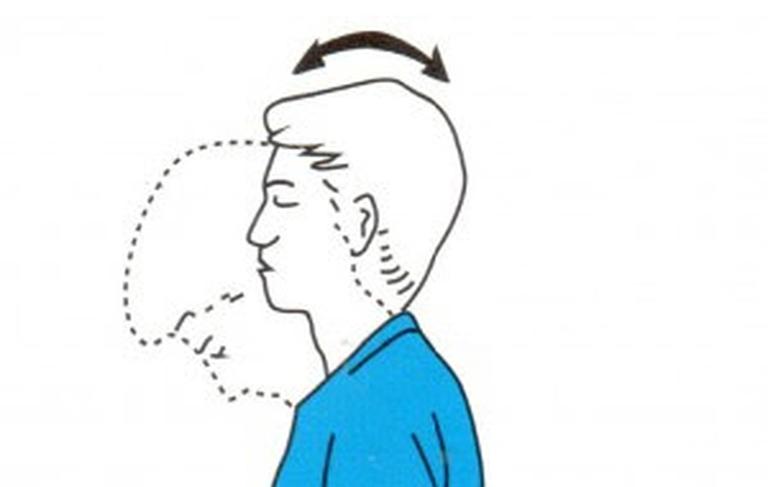 Top bài tập vật lý trị liệu đau vai gáy cổ