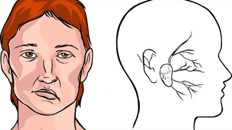 Vật lý trị liệu liệt cơ mặt (dây thần kinh số 7)